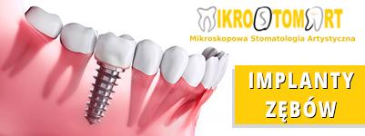 Implanty stomatologiczne - Mikrostomart